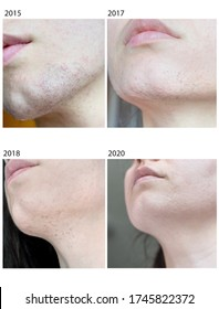 Authentic real photo showing the evolution of hair reduction as a result of electrolysis hair removal. Also known as hair removal with a needle. The procedure is used especially in hirsute women.