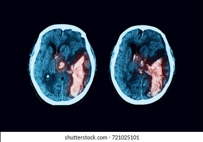 Axial (transverse) view of computed tomography (CT) scan of the brain case of intracerebral hemorrhage (ICH)