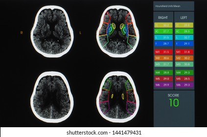 Axial view of magnetic resonance image or MRI of brain with contrast showing brain anatomy, lobes, perfusion and function.