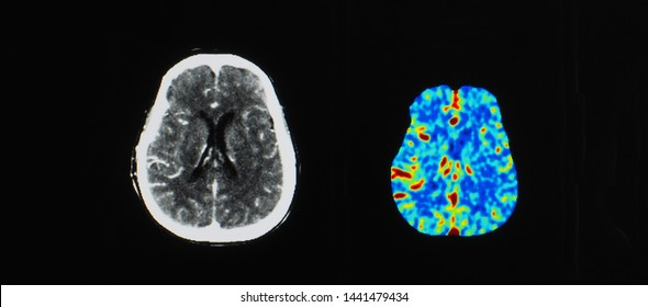 Axial view of magnetic resonance image or MRI of brain with contrast showing brain anatomy, lobes, perfusion and function. The red area indicates high brain activity, perfusion and function.