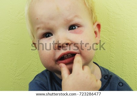 Baby Big Mosquito Bite Allergy Insect Stock Photo Edit Now