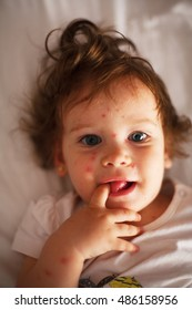 Baby with chicken pox laying on bed