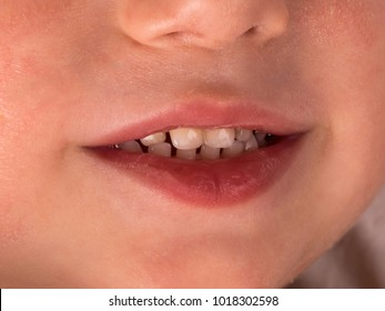 Baby smile close-up. Baby teeth. Macro.