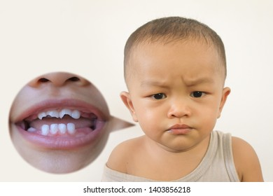 Baby and tooth decay.Concept of children's dental health.