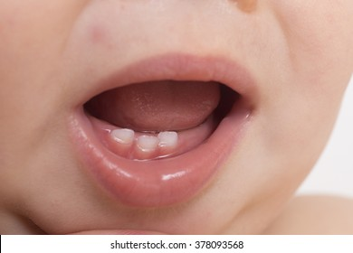 The baby's mouth with milk teeth