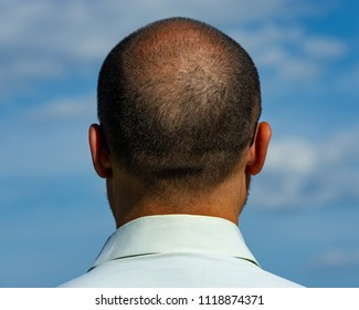 back of the balding man. Age 40 years.