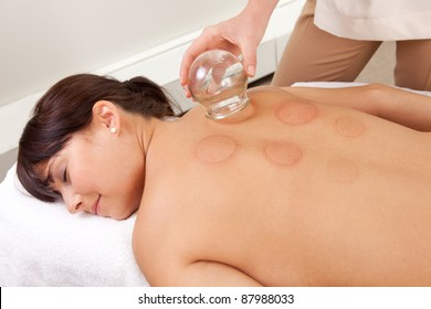 Back detail of a young woman who just underwent an acupuncture fire cupping treatment