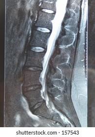 Back MRI