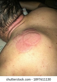 Back is red after cupping therapy