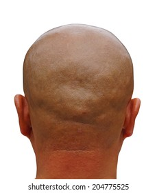 Back of shaved Head