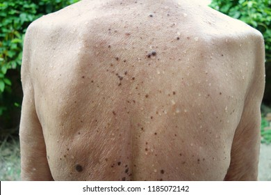 Back of skinny old man after having shower. Pale colour skin with aging spots, warts, brown pigmentation, moles, water drops and goosebumps on his wrinkle back. Photo taken outdoor, tropical weather.