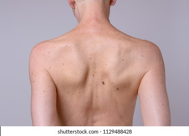 The back of a thin mature woman with many liver spots