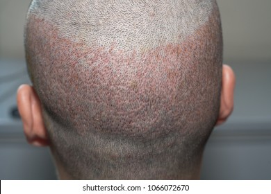 Back view of a man's head with hair transplant surgery. Bald head of hair loss treatment.