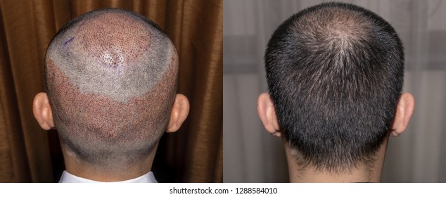 Back view of a man's head with hair transplant surgery with a receding hair line. - Before and After Bald head of hair loss treatment.