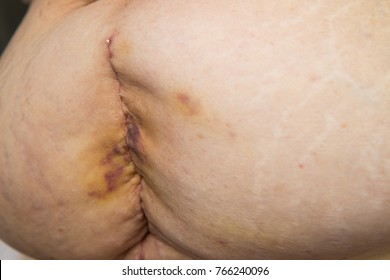 Back wound Surgery