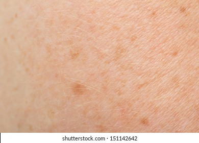 background of the skin with freckles. macro