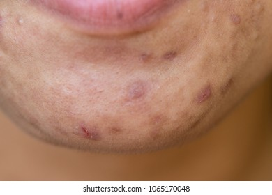 Backgrounds of Scarring Caused by acne on the face.