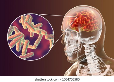 Bacterial brain infection medical concept, meningitis, encephalitis, 3D illustration