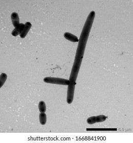 Bacterial growth. Huge bacteria. Birth of new bacter. Very dangerous huge bacteria.Photo from an electron microscope.