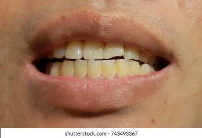 Bacterial plaque on teeth.