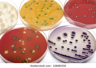 Bacterial plates, top view.
