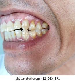Bad dental health,No teeth,No fluoride,Tooth erosion