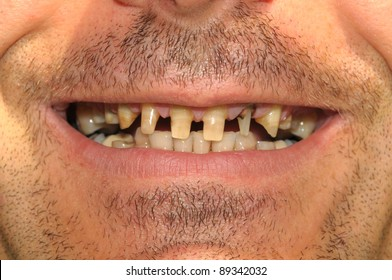 Would you date someone with bad teeth