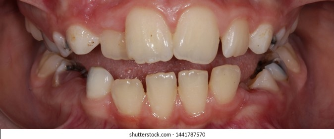 Bad teeth alignment and malocclusion, decayed teeth