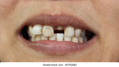 Bad teeth during treat to wait for fasten dentures