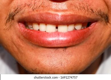 Bad teeth shape, straight teeth apart