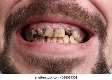 Bad teeth, smoker sick