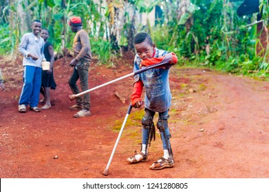 Bafoussam, Cameroon - 6 august 2018: young african boy victim of war landmine with broken legs walking with crutches in rural african village