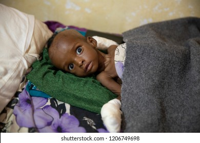 Baidoa / Somalia - March 2017 - Children in malnutrition due to drought in Somalia are treating in hospital