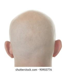 Bald Head