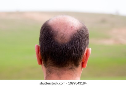 Bald head nape head baldness, hair transplant hair loss, stress