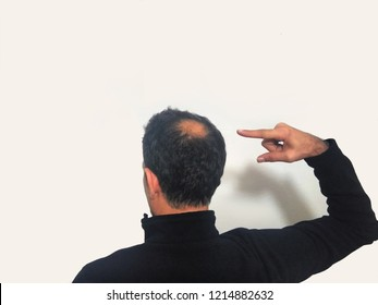 a bald man before and after bald head of a man on white background