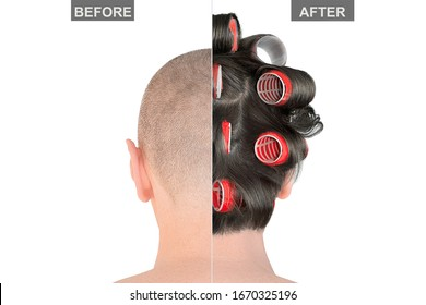 Bald man head before and after hair transplantation, isolated on white background. Creative concept treatment of alopecia. Extensions procedure result