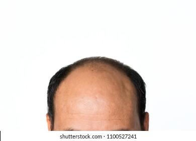 Bald man isolated on white background.