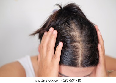 Bald man or woman worry about his or her less tthin hair on white background.