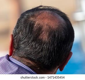 A bald man's head. Hair problem