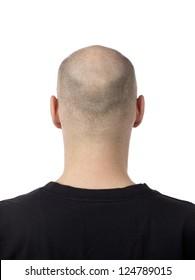 A bald-headed man with hair loss