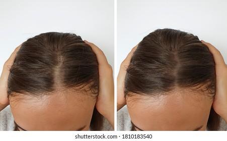 baldness hair  woman   after treatment