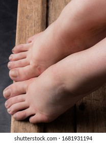 Ballerina's bare feet with small wounds and scars