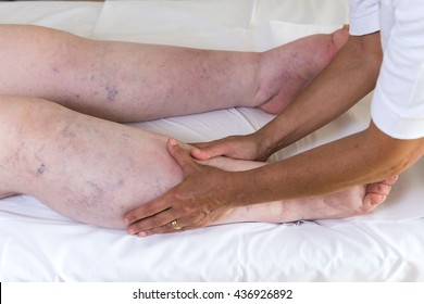 Lymphatic drainage images stock photos vectors shutterstock bandages legs and manual lymphatic drainage massage for a patient with swelling effect solutioingenieria Choice Image
