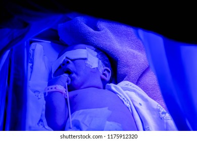 Bangkok, Thailand, July 07, 2018 : Closeup sick newborn baby sleeping on baby bed with ultraviolet lights of Phototherapy unit for treatment Neonatal hyperbilirubinemia / Neonatal jaundice.