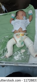 Banting, Selangor, Malaysia - 4 July 2018. The Ponseti method is a manipulative technique that corrects congenital clubfoot without invasive surgery. Congenital Talipes Equino Varus (CTEV).