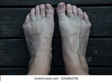 Bare feet with the condition tailor's bunion at the base of the little toes.