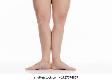 Bare female legs with spider veins. Realistic photo.