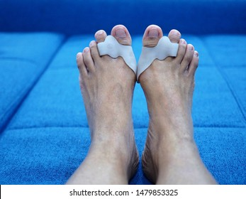 Bare foots which have Hallux Valgus (bunion) problem on blue sofa bed. A deformity of the joint connecting the big toe to the foot and caused painful.
