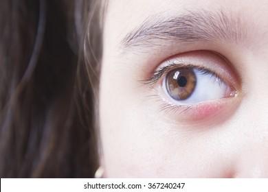 Barley on the lower eyelid swollen baby
